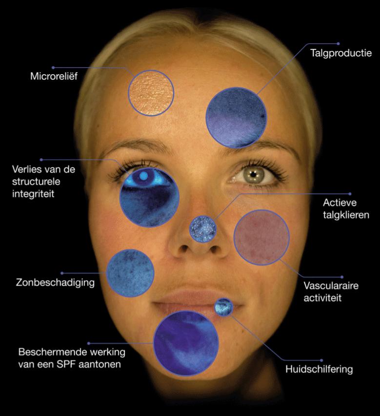 huidscan huidanalyse gelaatsverzorging