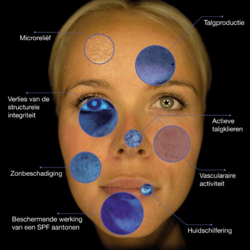 huidscan
